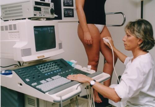 ultraschall venen