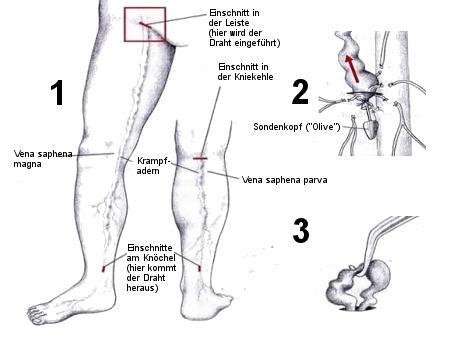varizenoperation